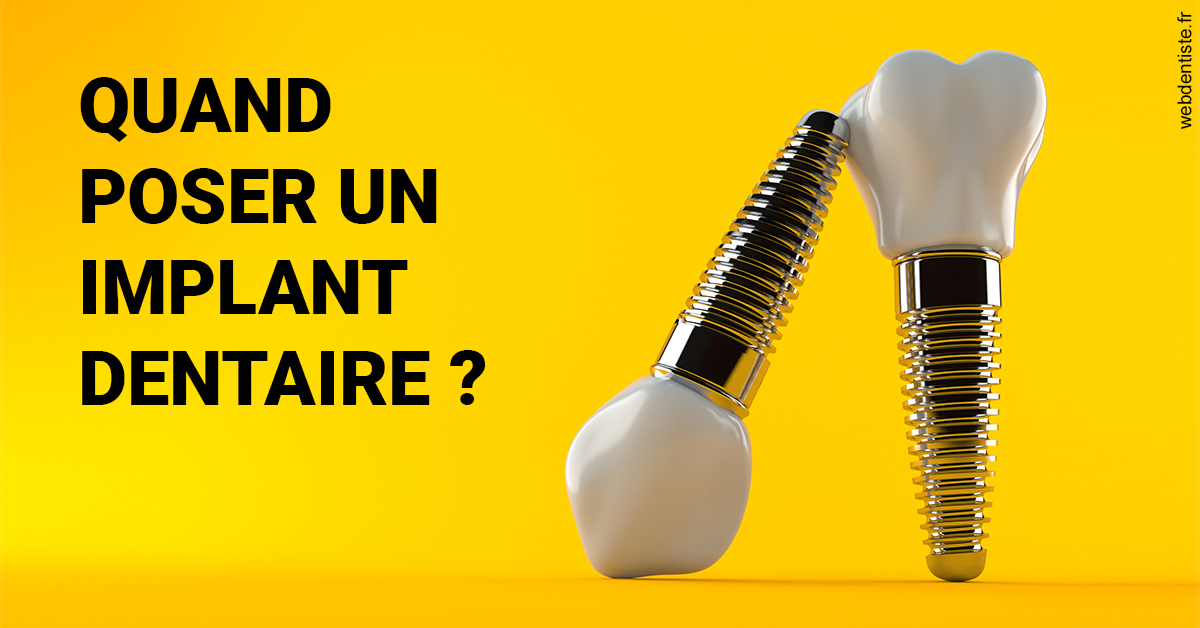 https://dr-geoffrey-szwarc.chirurgiens-dentistes.fr/Les implants 2