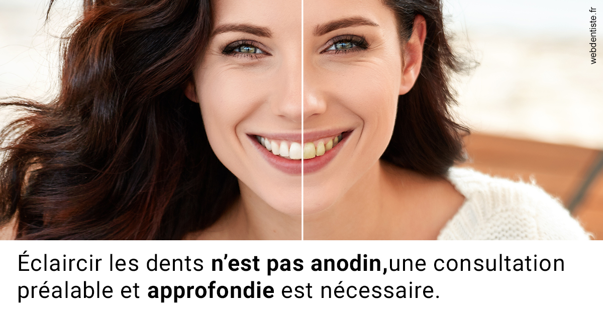 https://dr-geoffrey-szwarc.chirurgiens-dentistes.fr/Le blanchiment 2