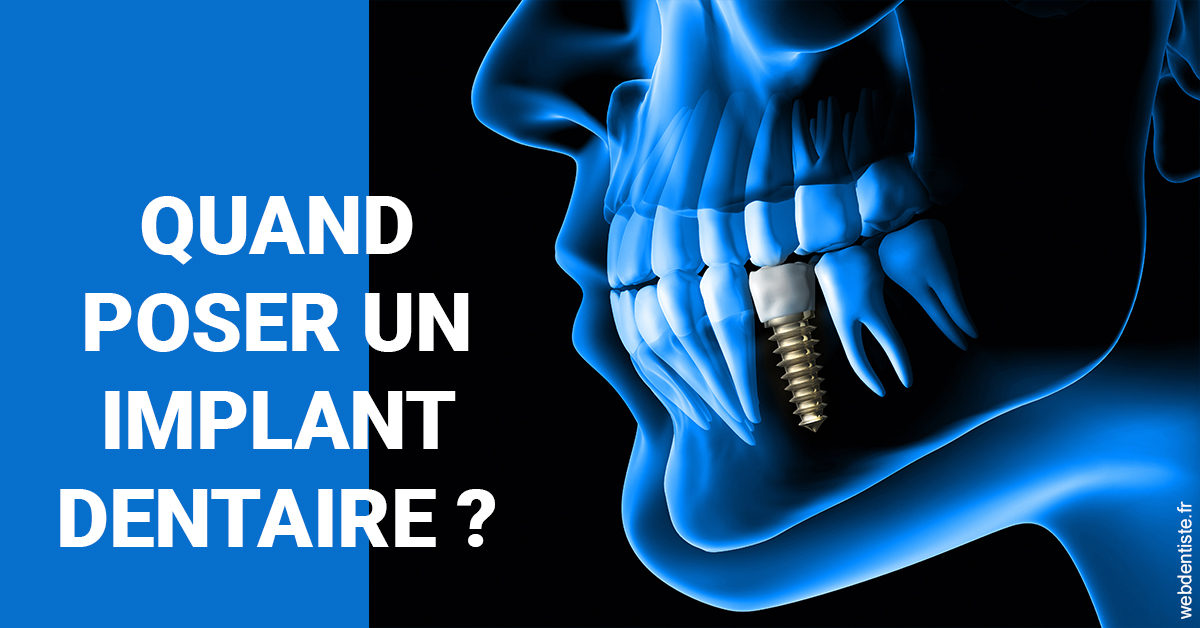 https://dr-geoffrey-szwarc.chirurgiens-dentistes.fr/Les implants 1